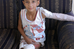 Child-Maimed by Israeli forces 2020-10-26