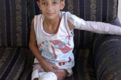 2020-10-26-child-maimed-by-Israeli-