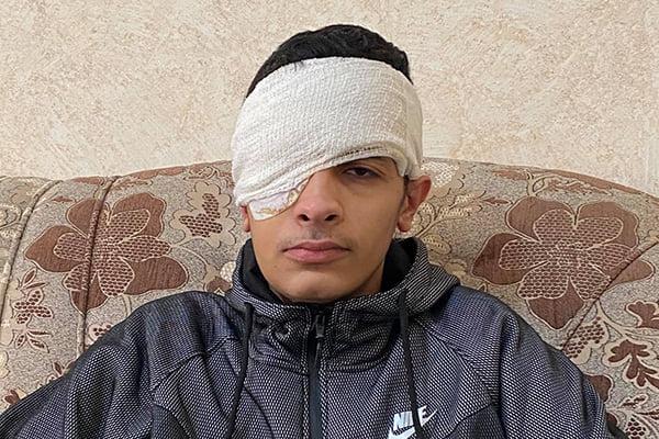 Palestine child lost eyes by Israeli Soldiers