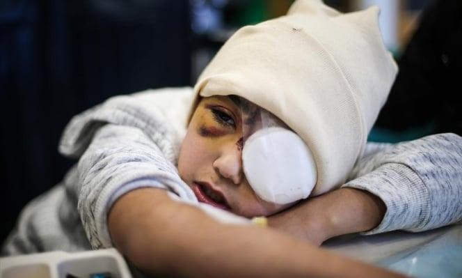 Palestinian child loss eye by Israeli Soldiers